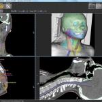 Система виртуальной симуляции ипланирования лучевой терапии Pinnacle