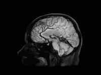 Black Blood Imaging