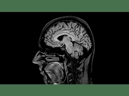 3D BrainVIEW